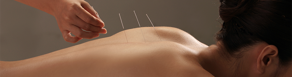 acupuncture-newtown-family-therapy